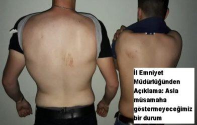 Iğdır 'Bekçi Ve Polis Şiddeti' İle Gündemde…!